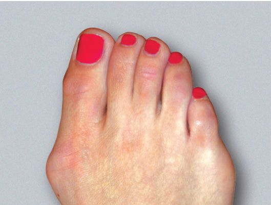 moderate bunion